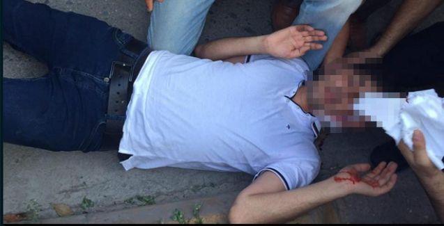 Suruç'taki katliamı protesto eden gruba silahlı saldırı!