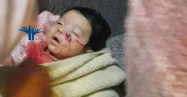 DİHA: Cizre'de 6 aylık bebeği öldürdüler