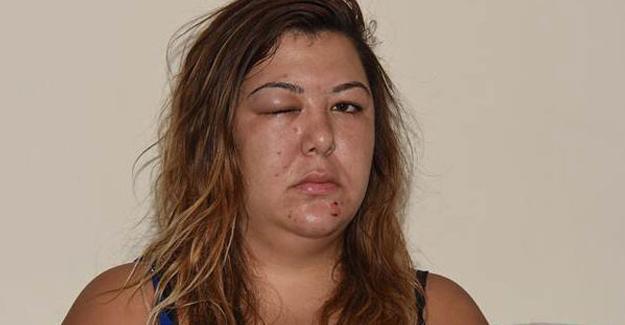 İzmir'de iki erkek sokakta genç kadını yumrukladı