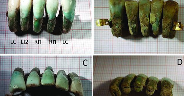 Bilinen en eski diş protezi bulundu