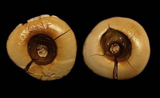 Bilinen en eski diş dolguları bulundu