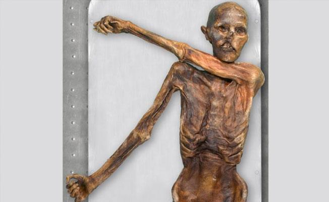Ötzi vurulduğu ok yüzünden değil donarak ölmüş