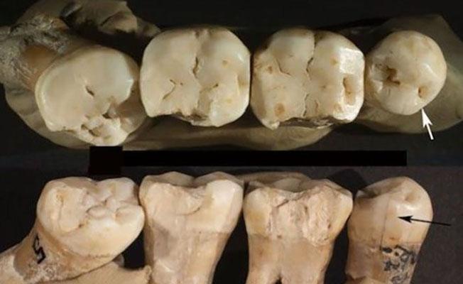 Neandertaller 130 bin yıl önce kürdan kullanıyordu