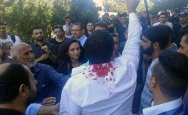 Polisten kafasına vurduğu gence: Kusura bakma, sizi HDP'li zannettik