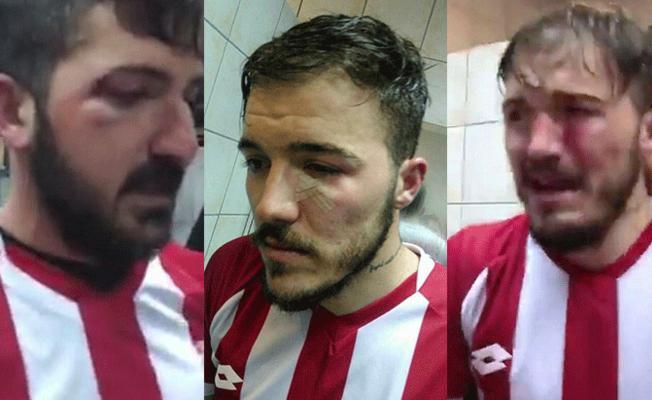 Maç sonrası futbolculara saldırı