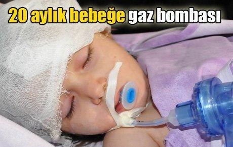 20 aylık bebeğe gaz bombası
