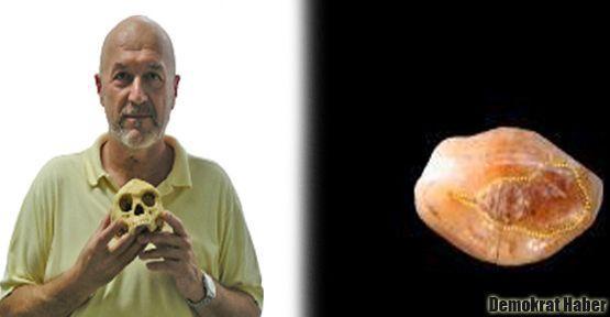 6 bin yıllık diş dolgusu bulundu
