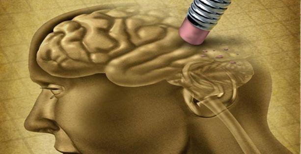 Alzheimer riski hangi mesleklerde daha fazla?