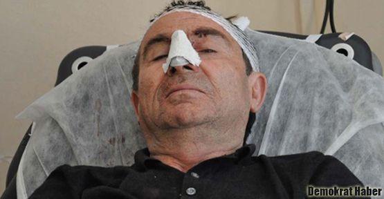 BDP'li vekil Halil Aksoy trafik kazası geçirdi