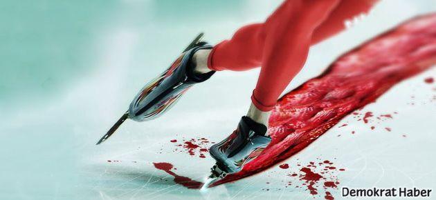 Çerkesler: Acılarımız üzerinde kayak yapmayın!