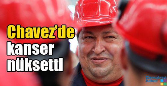Chavez'de kanser nüksetti
