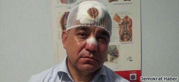 CHP'li vekil: Polis kaskıyla burnumu kırdı