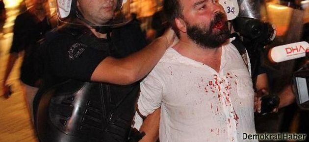 Dövene değil dövülene dava