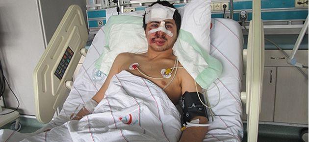 Gaz fişeğinin son mağduru: Burnu ve çenesi kırıldı