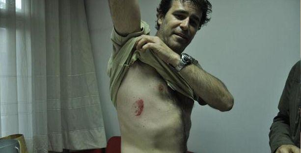 Gezi'nin yıldönümünde İtalyan gazeteci de polis şiddeti mağduru