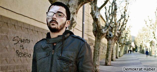 Gözünü kaybeden İtalyan genç plastik mermiyi yasaklattı