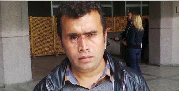 İçişleri'nden Gezi'de gözünü kaybeden işçinin tazminat talebine yanıt: Tedbir alsaydın!