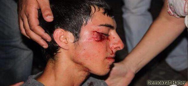 İHD: Türkiye polis devletine çevrildi