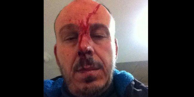 İstanbul'da trafikte polisten keyfi işkence: Burnunu kırıp, bayıltana kadar dövdüler!