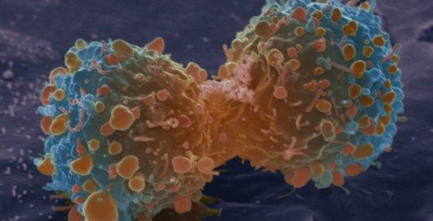 Kanserin en büyük nedeni 'şanssızlık'