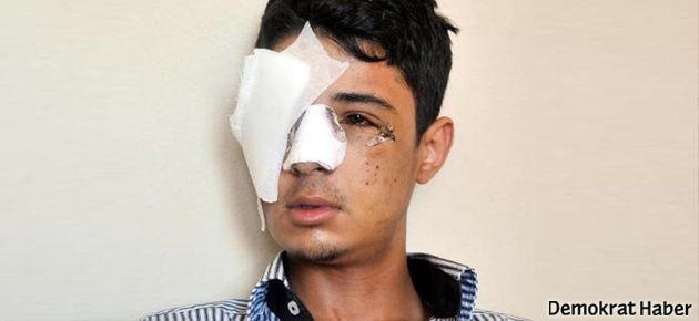 Kör eden polise kıdem cezası