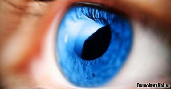 MS hastalığı göz testiyle takip edilebilecek