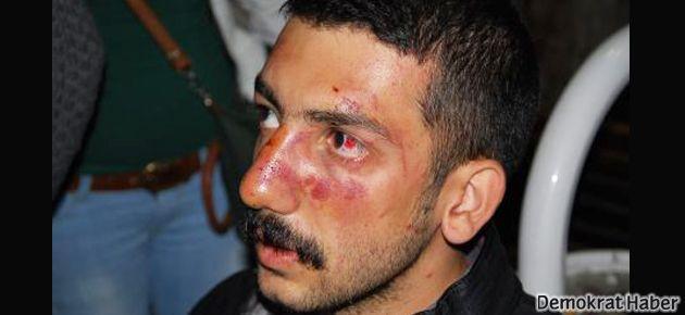 Öğrenciye vuran polis: Ben vurmadım cop çarptı