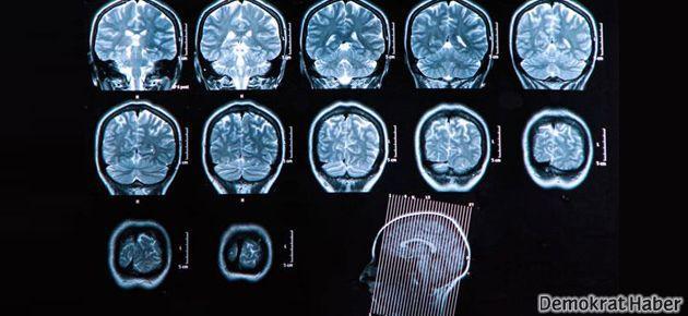 Parkinson hastalığına neden olan şey keşfedildi