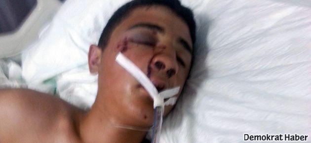 Polis aracının ezdiği genç yaşamını yitirdi