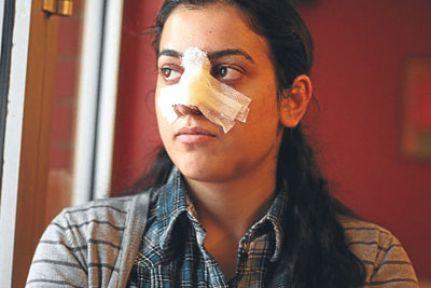 'Polis burnumu kırdı'