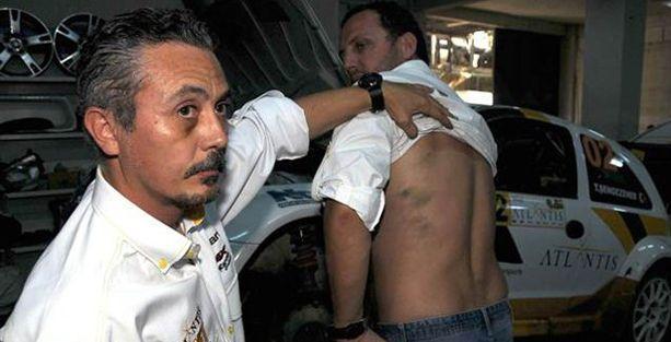 Bakanın korumaları yarışta ralli pilotunu mu dövdü?