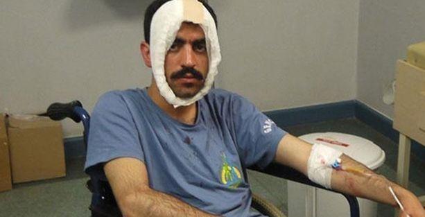 Satırla yaralanan Kürt öğrenciler hapiste!