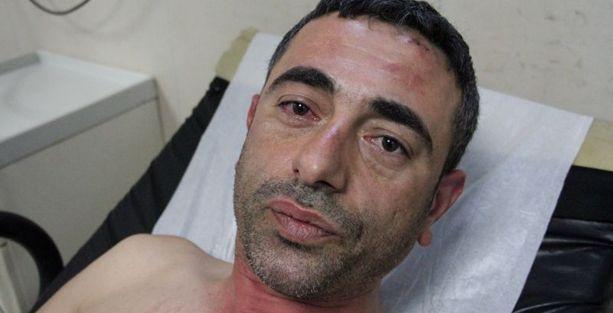 Trafik polislerinden cemevi başkanına darp iddiası