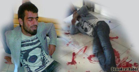 Ülkücülerin bıçakladığı Anti Kapitalist Müslüman genç hastanede