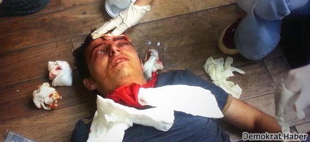 Yaralı eylemciyi tedavi eden doktora ceza mı geliyor?