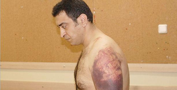 Yargıtay: Karakolda dayak işkencedir